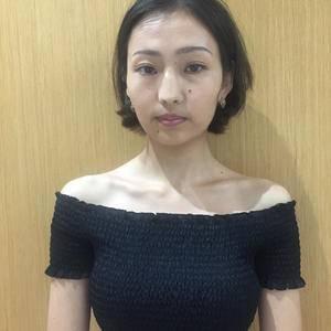 南京艺星BSK宫廷隆鼻鼻综合