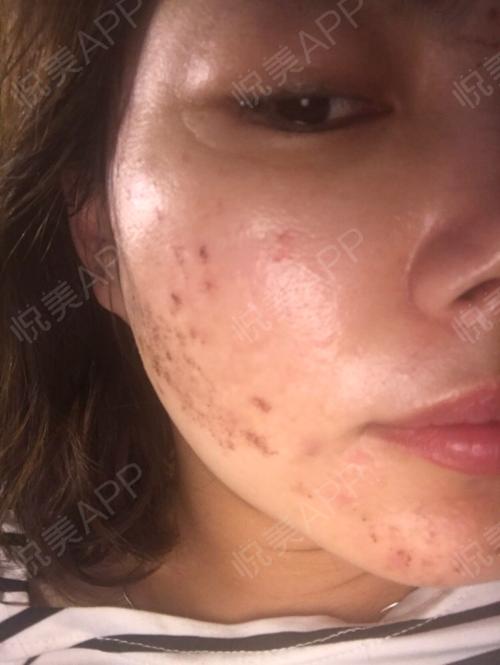 祛斑术后4天_皮肤美容术后4天_淡淡的忧伤分享图片2