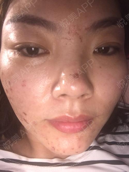 祛斑术后4天_皮肤美容术后4天_淡淡的忧伤分享图片4