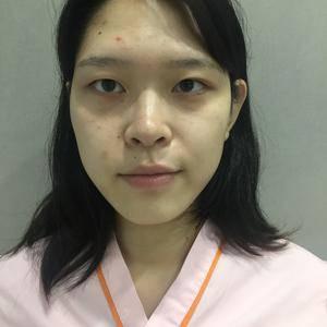南京艺星自体脂肪全脸填充