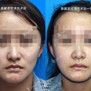 鼻基底注射物取出后行膨体鼻翼基底填充术