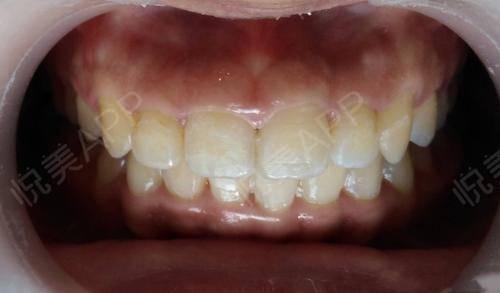 冷光美白术后7天_牙齿美白术后7天_牙齿美容术后7天_大小分享图片3