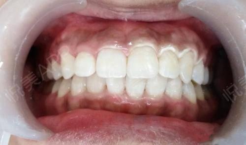 冷光美白术后7天_牙齿美白术后7天_牙齿美容术后7天_大小分享图片4