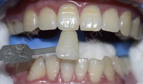 冷光美白术后5天_牙齿美白术后5天_牙齿美容术后5天_可爱仙女西西分享图片1