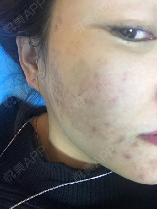 祛斑术后8天_皮肤美容术后8天_淡淡的忧伤分享图片1
