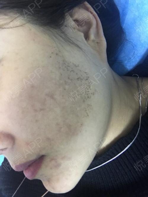 祛斑术后8天_皮肤美容术后8天_淡淡的忧伤分享图片3