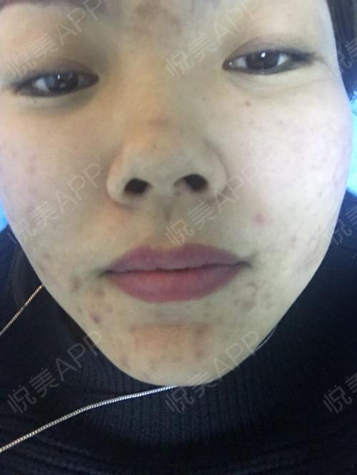 祛斑术后8天_皮肤美容术后8天_淡淡的忧伤分享图片4
