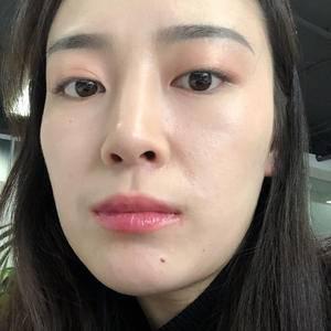 假体综合隆鼻