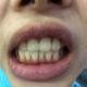 洗完后的样子,服务挺好的,洗牙的过程稍微有点酸痛,希望牙齿健康