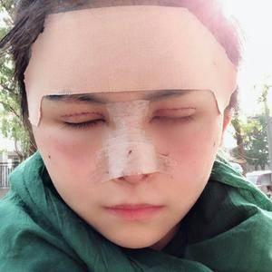 草坪上的月光切开双眼皮、双眼皮术后3天第3页图