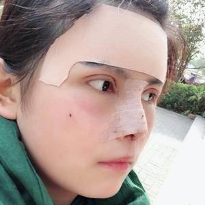 草坪上的月光切开双眼皮、双眼皮术后3天第1页图