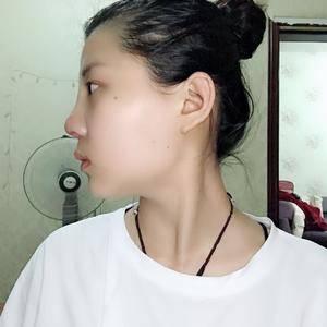 悦Mer_6768675776鼻综合手术术后7天第3页图