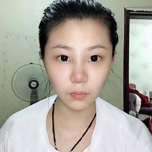 悦Mer_6768675776鼻综合手术术后7天第1页图
