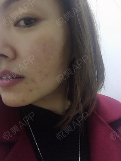 祛斑术后14天_皮肤美容术后14天_淡淡的忧伤分享图片2