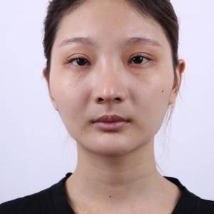 改脸型(下颌角+颧骨)+眼综合