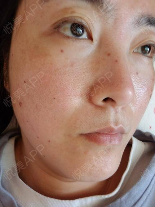 祛斑术后1天_皮肤美容术后1天_浅陌入画莫负韶华分享图片3