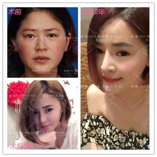 唐鏖-鼻综合3.jpg