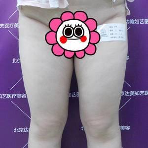 北京达美如艺医疗大腿吸脂