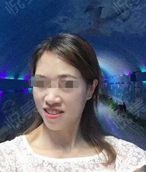 激光祛斑术后141天_祛斑术后141天_美白嫩肤术后141天_皮肤美容术后141天_蝶舞沧海分享图片1