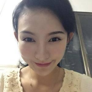 一朵洁白的云北京炫美自体肋软骨鼻综合告别短鼻子术后130天第2页图