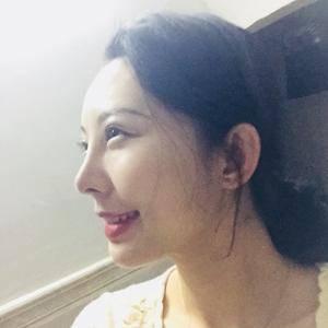 一朵洁白的云北京炫美自体肋软骨鼻综合告别短鼻子术后130天第3页图