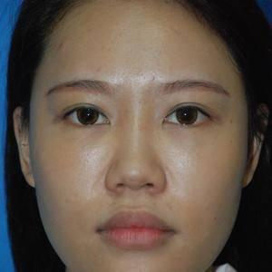 蒳美迩鼻部综合手术