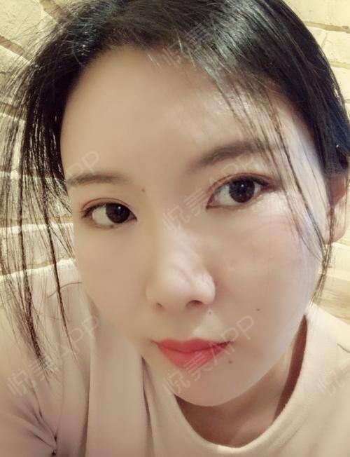 【北京亚韩整形】面部填充术后90天宝宝们你们好,我来更新了,今天是我术后90天了,现在感觉整个面部都很饱满,自从做了面部...