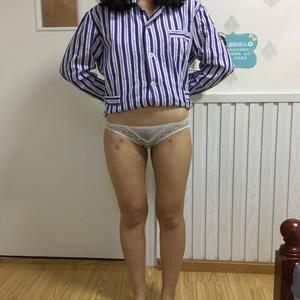 大腿吸脂术前照