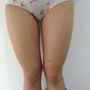 大腿环吸手术