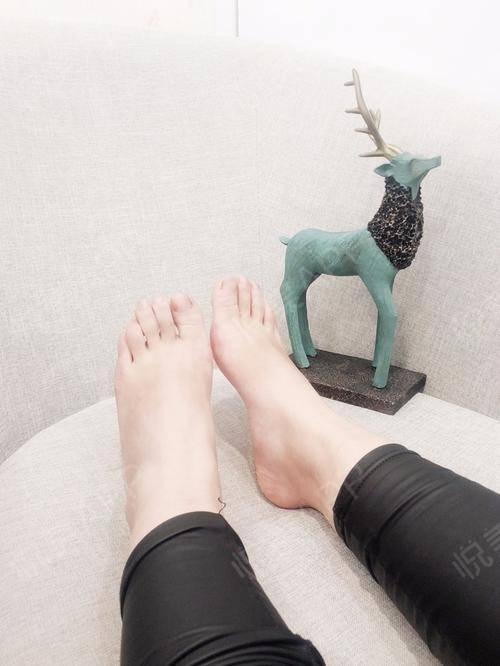 做完大脚骨快10个月了,现在脚已经完全恢复,切口上的疤已经没了,拇趾从挤压二脚趾变成直线形,脚掌也纤细了好多;现在买38...