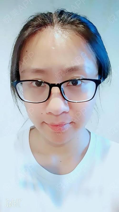 今天是打完瘦脸针后快半个多月了,跟之前一周时候的变化不太大,医生告诉我说一个月左右是效果最好的。这个我听很多宝宝说过,每...