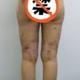 我做的是大腿环吸,医院环吸额外赠送我两个部位的吸脂,今天是第五天,换上束身衣的这几天习惯了很多,大腿...