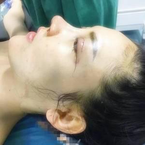 悦Mer_5927419820华悦府肋骨隆鼻术后1天第2页图