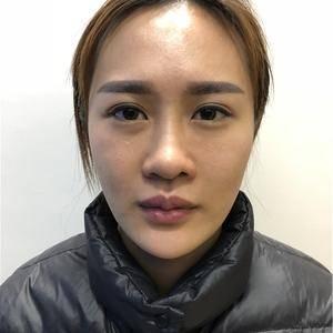 鼻修复 鼻综合 面部吸脂