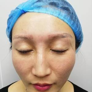 全切双眼皮修复+开内外眼角+疤痕修复