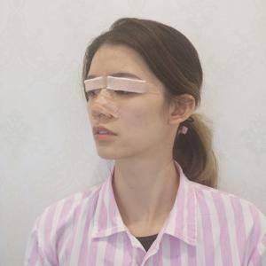悦Mer_4126403534美贝尔 切开双眼皮术后3天第2页图