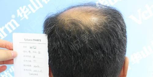 种植头发是我一直以来的想要完成的目标,在单位工作这么多年,工作压力大,自己一直没有在意头发这个问题,今年是想着一定要把头...