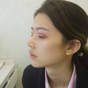 悦Mer_4126403534美贝尔 切开双眼皮术后7天第2页图