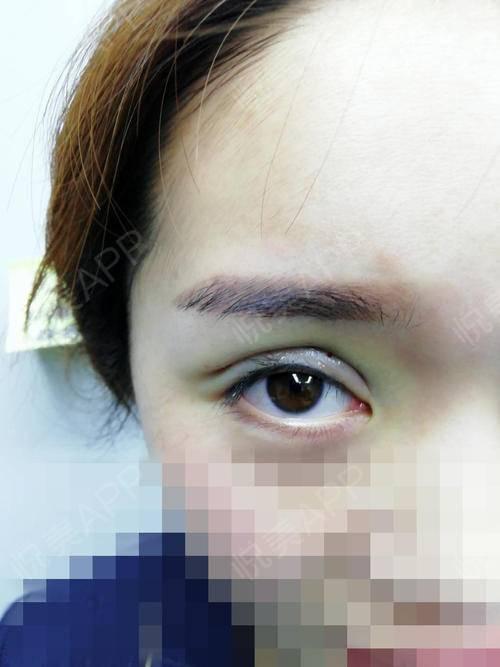 哈喽艾瑞巴蒂。我想给大家分享一下我的整形记录我其实天生就是大眼睛,但是宽度不对称还轻微有点三眼皮,看着很像金鱼眼不好看。...
