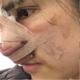 刚说了现在鼻子包着纱布是很难受的,不过护士给我看了刚术后拍的照片心里真的是美滋滋的,鼻子形状真的超级...