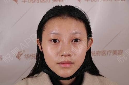 自体肋软骨隆鼻术后10天_鼻综合术后10天_隆鼻术后10天_鼻部整形术后10天_茜儿分享图片3