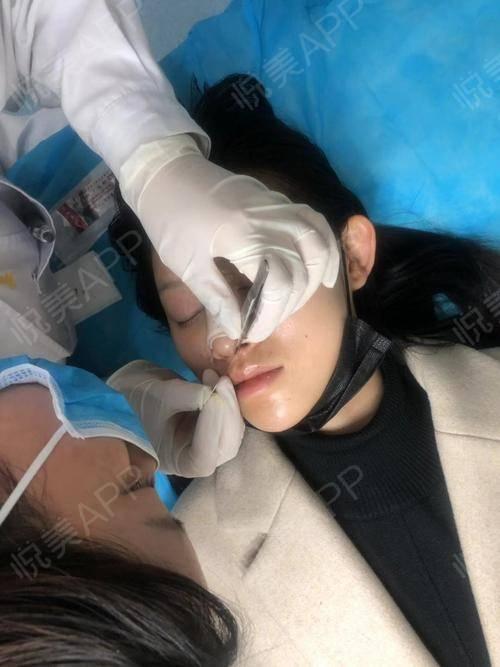 自体肋软骨隆鼻术后10天_鼻综合术后10天_隆鼻术后10天_鼻部整形术后10天_茜儿分享图片2