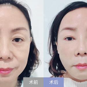 【北京亚韩医疗美容】——V塑美自体脂肪综合填充