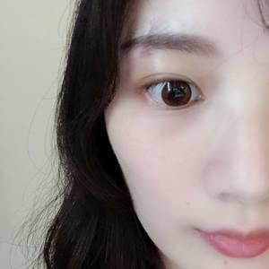 寿烨 激光祛眼袋