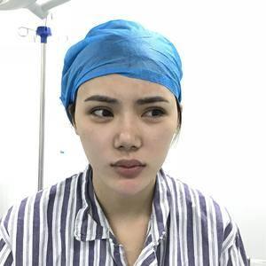 自体脂肪全脸填充鼻部修复