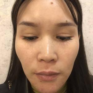 隆鼻恢复过程