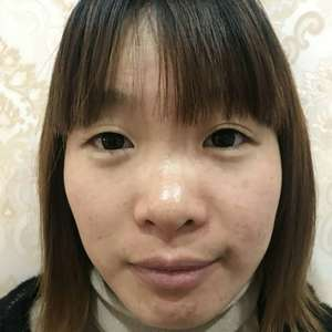 奉浦 眼综合+鼻综合