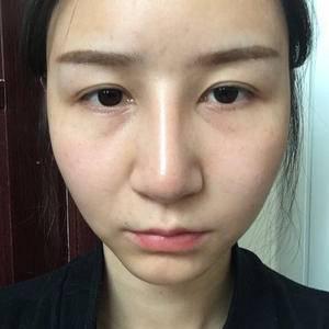 芭比隆鼻术