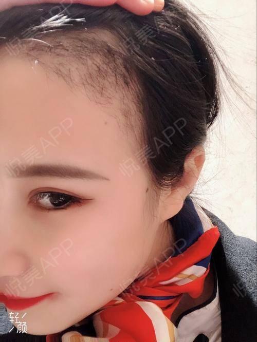 【郑州华山发际线种植】植发有一个多月的时间啦,现在正处于脱落期,有三分之一的头发都脱落了,只是暂时的,后面会长出来。这个...