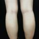 走路的时候小腿会有点酸酸的感觉,应该是肉毒素起作用了,期待一周后的效果!